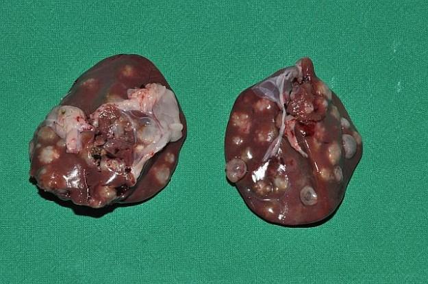 tuberkulose symptome krankheitsverlauf
